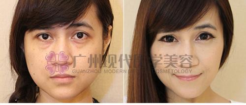 非手术祛眼袋