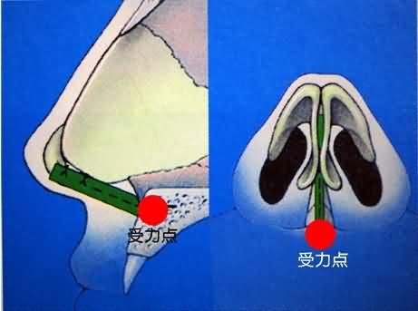 鼻综合整形的受力点在上颌骨
