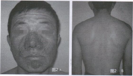结节性硬化症患者治疗前面部及背部皮损