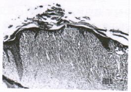 结节性硬化症患者面部皮损组织病理像