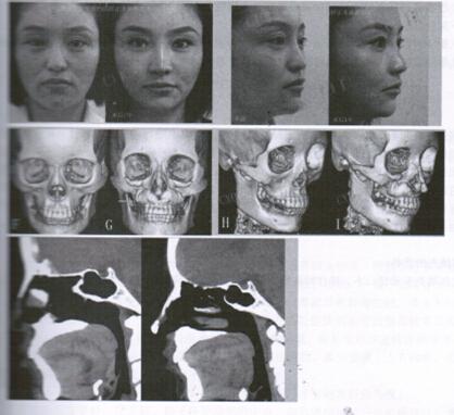 鼻基底(鼻旁区及梨状孔区)CHA填充