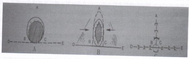 图5 O-T或A-T 皮瓣