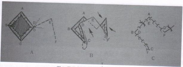 图2 菱形皮瓣:采用改良菱形皮瓣