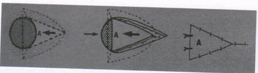 图6 皮下蒂皮瓣