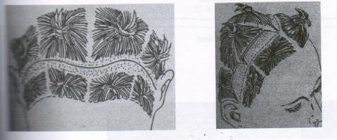 额颞部提升——冠状切口开放术式