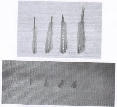 图7 制备好的毛囊单位移植物