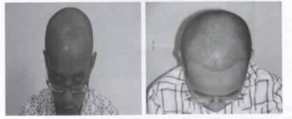 图10 脱发患者头发再平衡术的前后对比