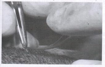 图6 游离毛囊单位后,用镊子提取毛囊单位