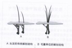 图2头发的传统解剖结构与毛囊单位的解剖结构对比