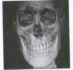 图1 牙槽突裂患者模型
