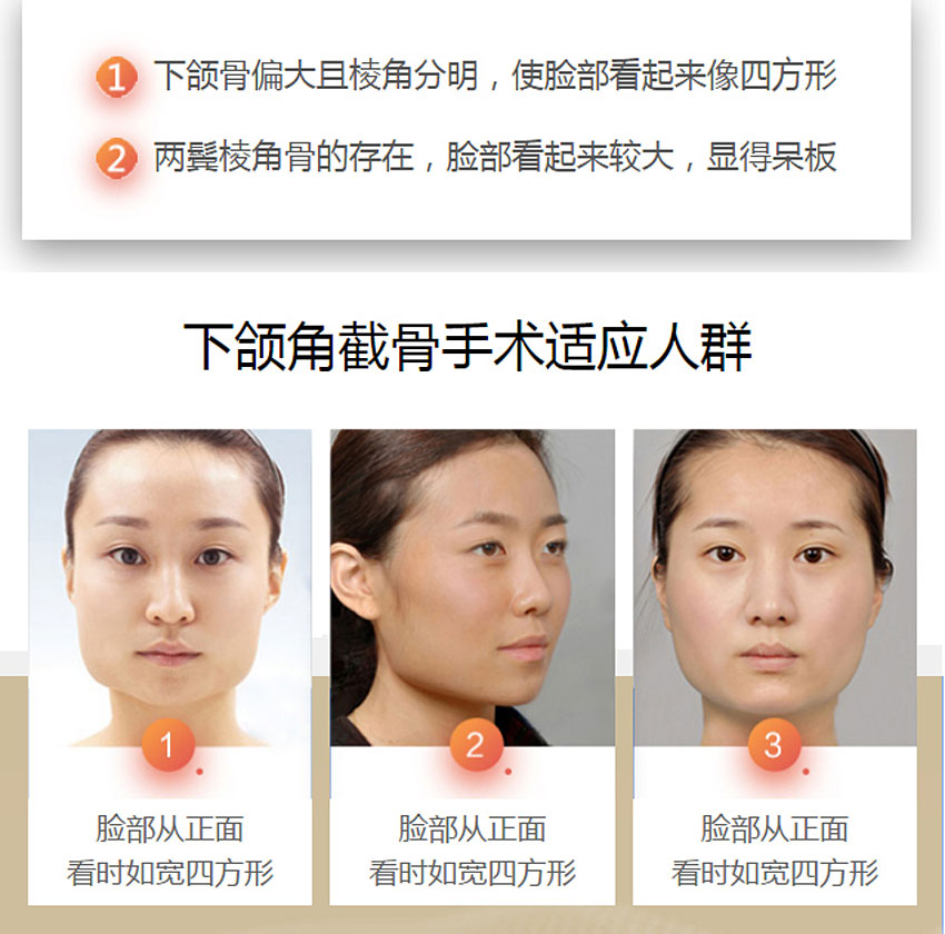 上海港华下颌角截骨术