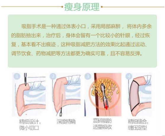 养和上臂吸脂原理