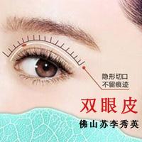 眼部整形双眼皮佛山苏李秀英医院整形科杨智伟优惠手术的封面
