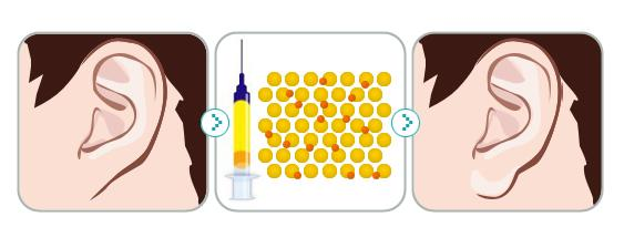 玻尿酸填充耳垂效果怎么样