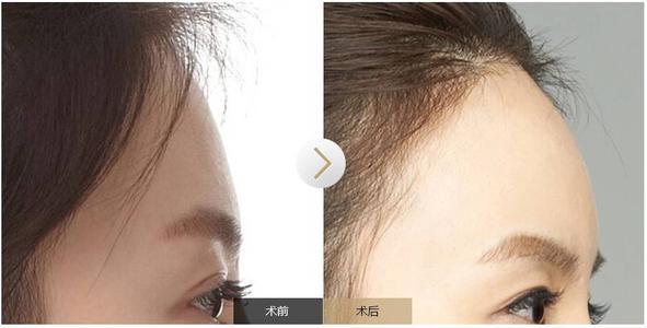 疤痕体质的人群适合丰额头吗