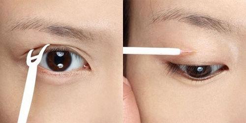 割双眼皮可能出现哪些并发症