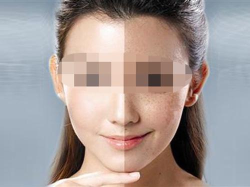 斑的类型多种多样 皮秒祛斑较合适