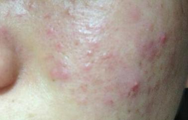拯救因为熬夜所带来的痘痘、皮肤变差等问题
