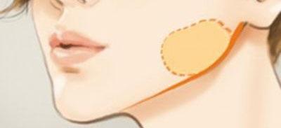 将颊脂垫取出导致张不开嘴 这到底是怎么一回事