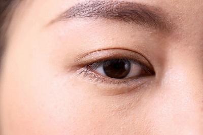 双眼皮为什么不能做太宽 人造痕迹明显更难看