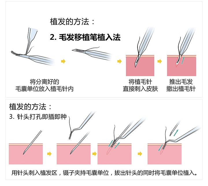 北京壹加壹生态植发 拒绝秃顶 告别脱发烦恼 5元/单位