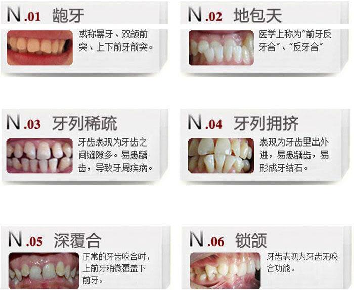 重庆联合丽格牙齿矫正 丽格金属托槽牙齿矫正7500元