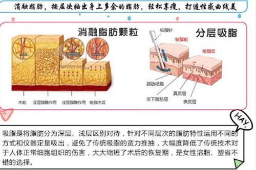 南京明基全身吸脂 打造精致迷人曲线