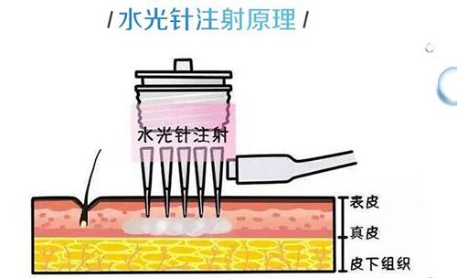 襄阳悦美润百颜水光针  深层注射 肌肤自然水润 (1支)