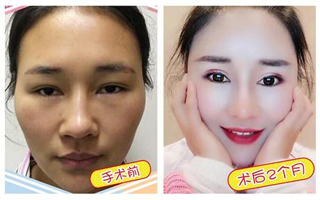 襄阳悦美网红套餐 眼综合+鼻综合+下巴+全脸脂肪填充