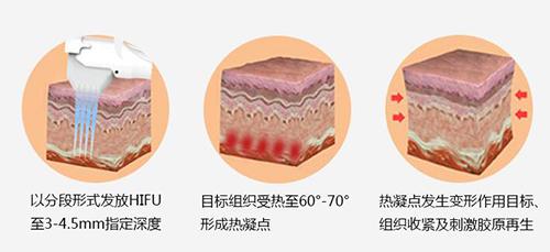 襄阳悦美郑州超声刀面部提升 提拉紧致 除皱减龄(一个部位)