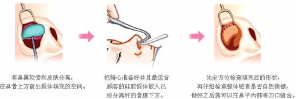 上海东方综合隆鼻 打造高挺自然美鼻 逼真不怕揉捏