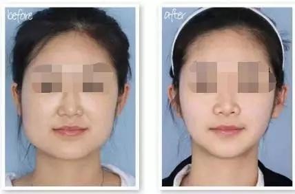 天津华美塑颜瘦脸针 一针打造v脸美人
