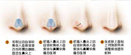 上海东方鼻综合 自体耳软骨垫鼻尖+美国进口膨体隆鼻 安全无排异 不惧揉捏