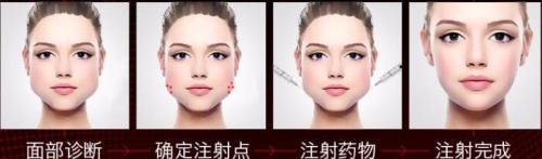 上海东方衡力瘦脸针100U 缔造小V脸 塑精致美颜