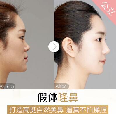 上海东方美国进口假体隆鼻 打造高挺自然美鼻 逼真不怕揉捏