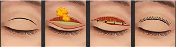 上海东方切开双眼皮 个性定制 给你精致双眸
