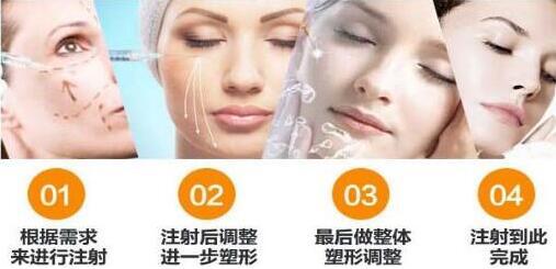 上海东方瑞蓝玻尿酸 1ml 三甲公立 快速安全