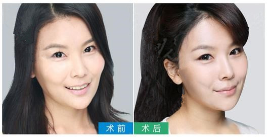 新疆华美Botox除皱 告别皱纹美出自信