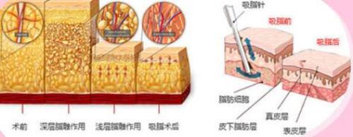 """上海东方腰腹部吸脂 塑出有型平坦腹部 全方位吸脂 轻松享""""瘦"""""""