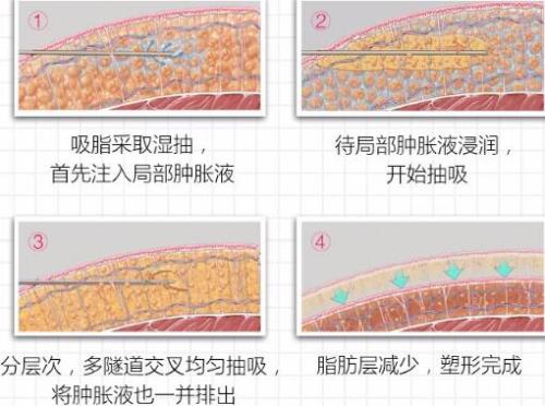 上海东方单部位吸脂瘦身 告别臃肿赘肉 收获纤细身材 做窈窕美人