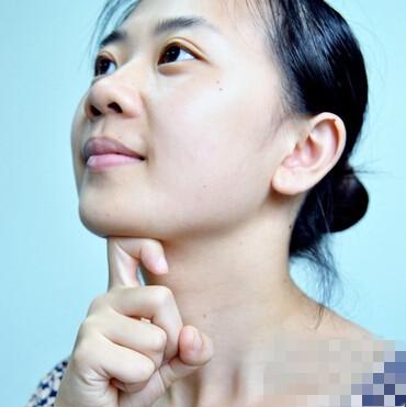 衰老松弛、脂肪堆积、下巴填充不当,你是哪种类型的双下巴