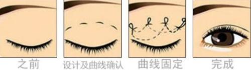 锦州博美雅埋线双眼皮 快速 无痛 留学归来院长亲自面诊设计芭比双眼皮