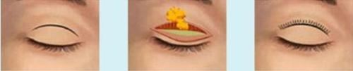 锦州博美雅韩式短切口双眼皮  为你打造专属魅眼
