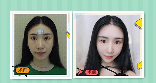 海南皮肤病激光自体脂肪填充 青春常驻福气满满