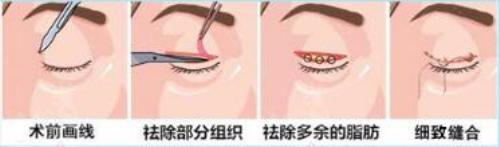 锦州博美雅切开双眼皮 改善小眼睛 打造迷人明亮大眼