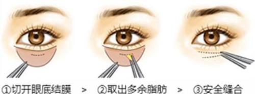 锦州博美雅内切祛眼袋 精细无痕自然微创 告别衰老 立显年轻
