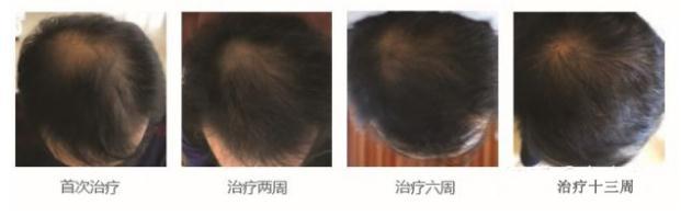 长沙雅美又引进黑科技—韩国AAPE防脱生发只需21天