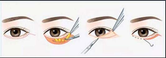 锦州博美雅外切祛眼袋 袋走岁月痕迹 重现迷人电眼