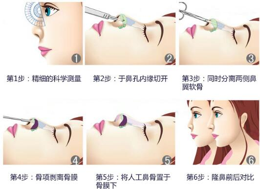 锦州博美雅假体隆鼻 娇俏自然 立体秀挺 塑造靓丽侧脸线条