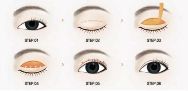 讲解:全切双眼皮手术看看你适不适合